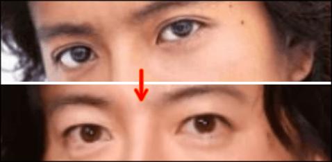 キムタク,目,変わった,整形