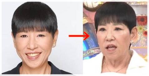 和田アキ子の目が変わった比較画像